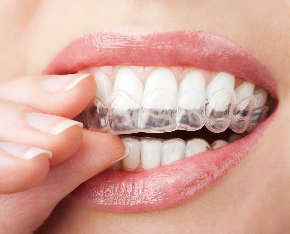 חידושים ברפואת שיניים